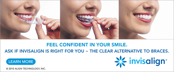 TrioHORZLg Invisalign | Richmond Dentists